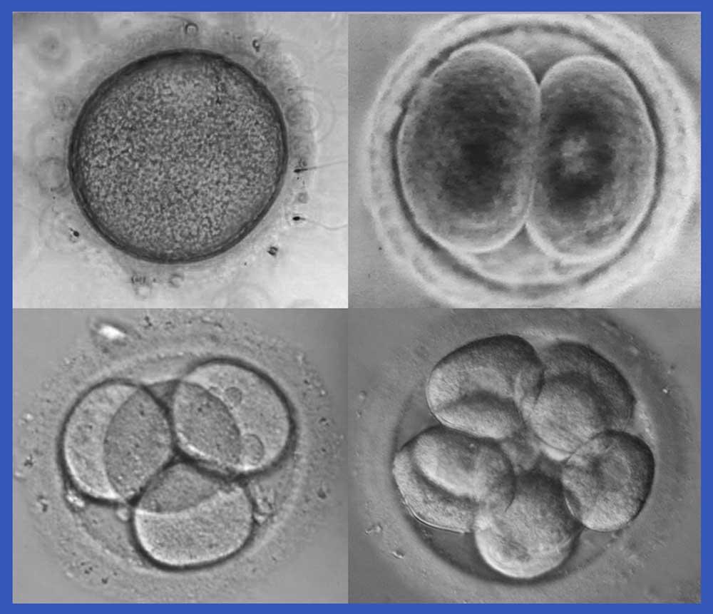 ¿Qué es la Geometría Sagrada?.   Imágenes artículo Jesús Zatón. Óvulo y espermatozoides al microscopio